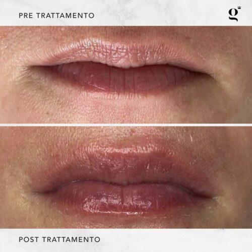 trattamenti-botox-labbra-naturali