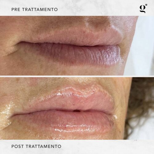 trattamenti-naturali-botox-labbra