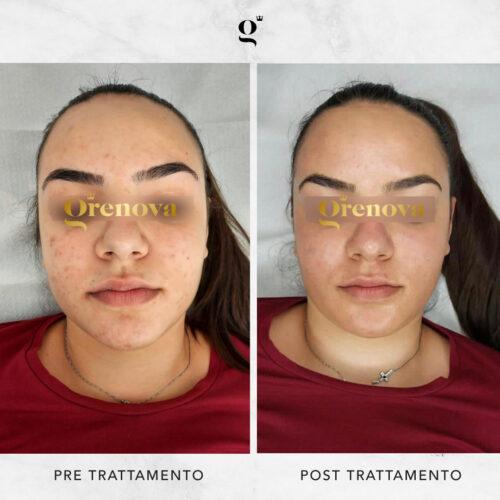 come trattare l'acne