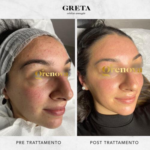 prodotti per trattare acne