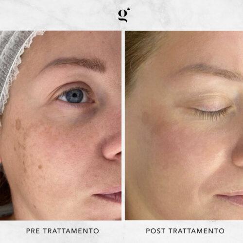 trattamento-macchie-pelle