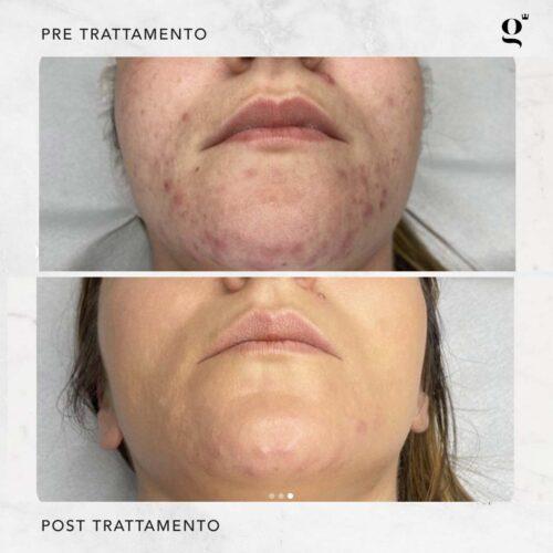 trattamenti-needling-acne