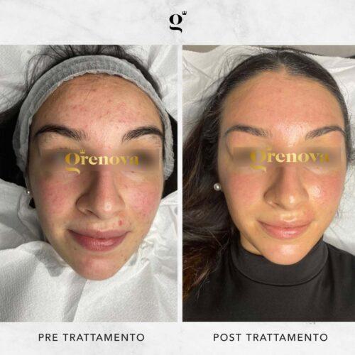 trattamenti-needling-contro-acne