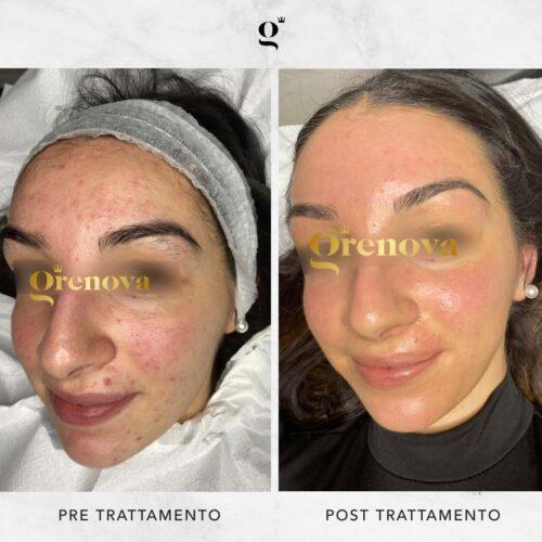 trattamenti-needling-domiciliari-acne