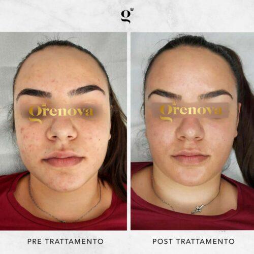 trattamenti-needling-domiciliari-contro-acne